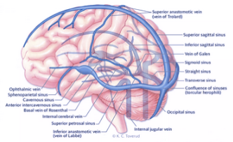 Brain thrombosis